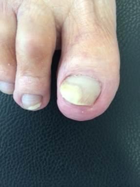 Il fungo che sta sulle dita che trattare