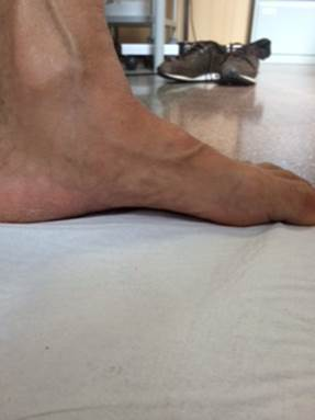 Come togliere un fungo su unghie di ammoniaca di liquido di gambe