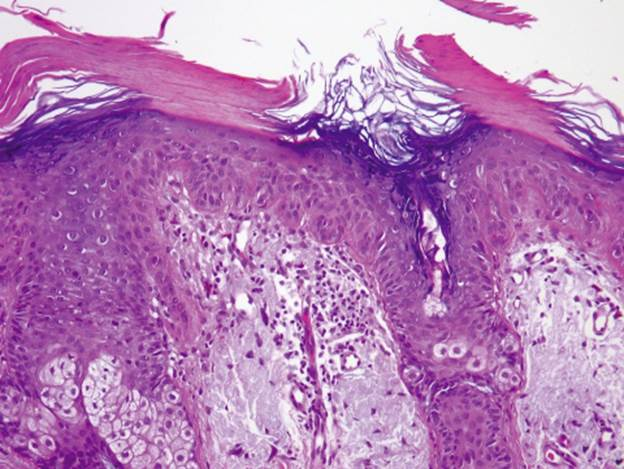 Squamous cell carcinoma of skin