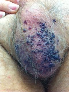 Dermatite di atopic in trattamento di 2 anni