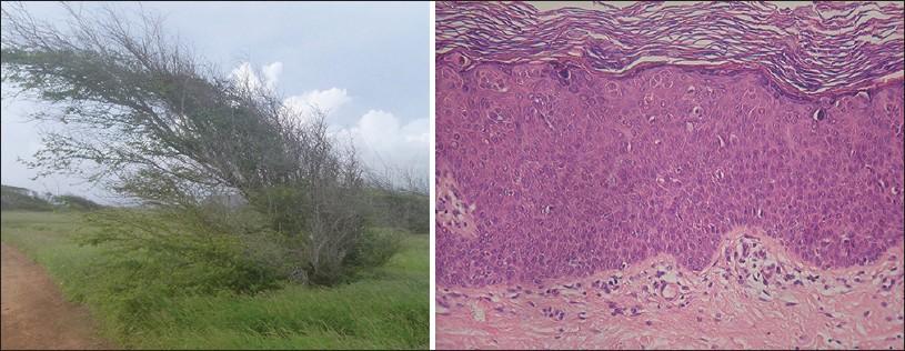 Lymphocytic infiltration | definition of lymphocytic ...