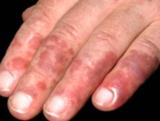 Sever itching hands - Dermatology - MedHelp