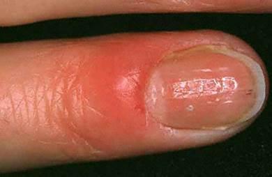 Perché la posizione di unghie annerisce per trattarli