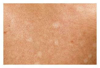 Hypopigmented patch on skin