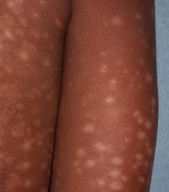 idiopathic guttate hypomelanosis #10