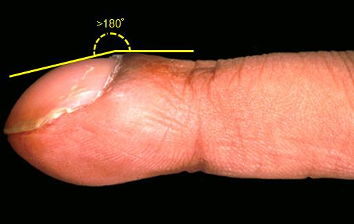 Analoghi di ekzoderit da un fungo di unghie