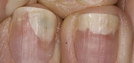 Come guarire un fungo di unghie e rimedi di gente di piedi