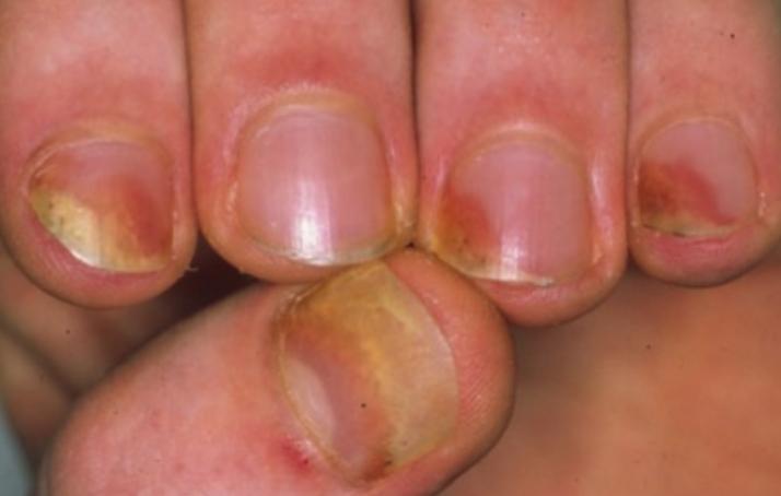 Unguento di prurito di eczema